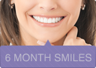 6 month smiles at a Bristol Orthodontist